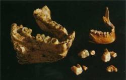 步氏巨猿(左)和人(右)下颌骨和牙齿的比较