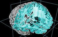 科学家公布迄今最清晰人类大脑3D图像(图)