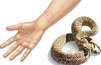 蝮蛇咬伤救治的四原则
